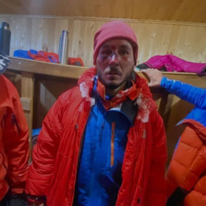 Жуткие фото альпинистов, выживших на Эльбрусе