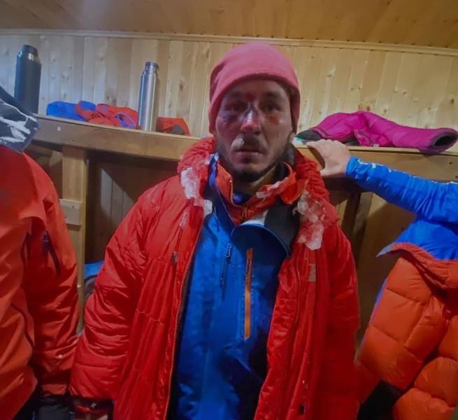 Альпинисты получили сильное обморожение