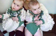 Мама успешно разделенных сиамских близнецов ждет еще одного ребенка