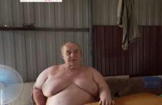 Страдающий ожирением человек-гора из Ростовской области сделал операцию на желудке