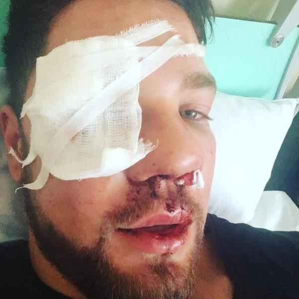 Сейчас Ковалев находится в больнице